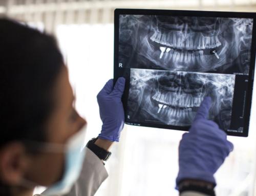 2. ¿Los ganchos de la prótesis estropearán mis dientes, encías o implantes?
