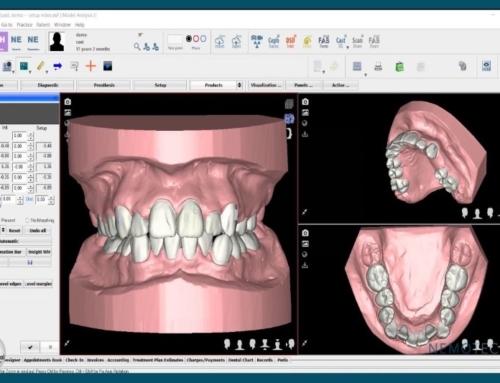 ¿Funciona Invisalign para resolver el apiñamiento dental?