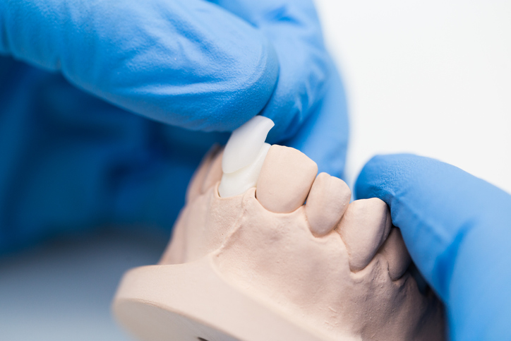 Close up shot of dentist's technician's hands working on a prosthetic tooth, measuring the crown of a tooth.