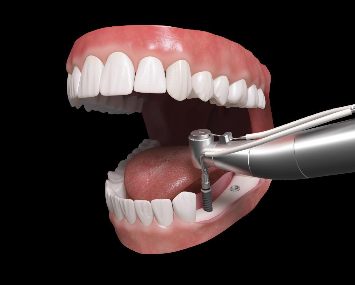 Implante Dentale Klockner